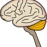 認知症32